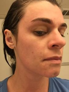 immediately after rinsing; mask left on for 45 mins.